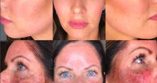 Chemical Peel Facials Salt Lake City: Trilo